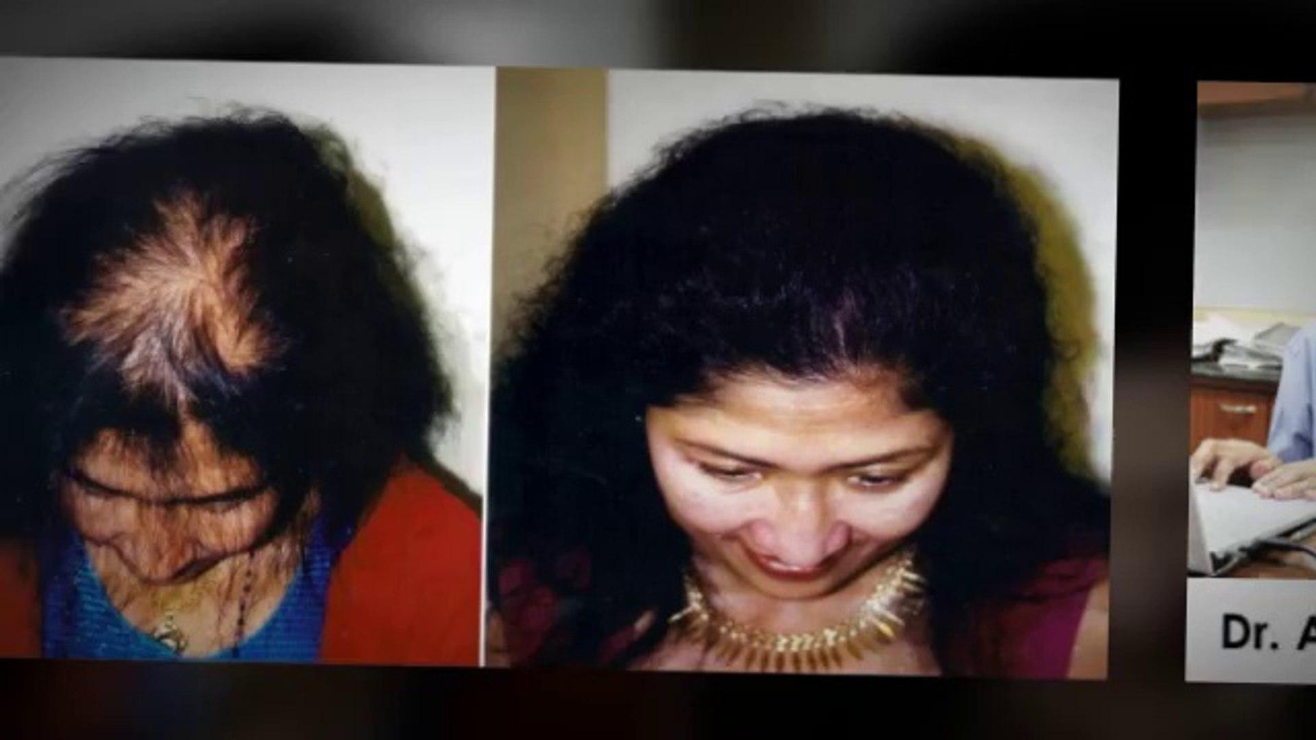 how to grow hair - how to reduce hair fall - how to stop hair fall - hair Transplant Chennai - Dr. A