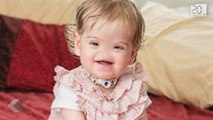 Née sans nez les internautes peuvent aider pour son futur