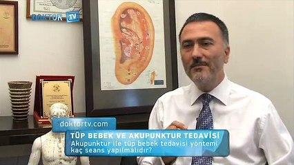 Akupunktur ile tüp bebek tedavisi yöntemi kaç seans yapılmalıdır? - Fragman