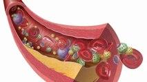 Healthy Heart, Heart Defects, Heart Disease Specialist, Heart Specialist, Heart Valvular Disease