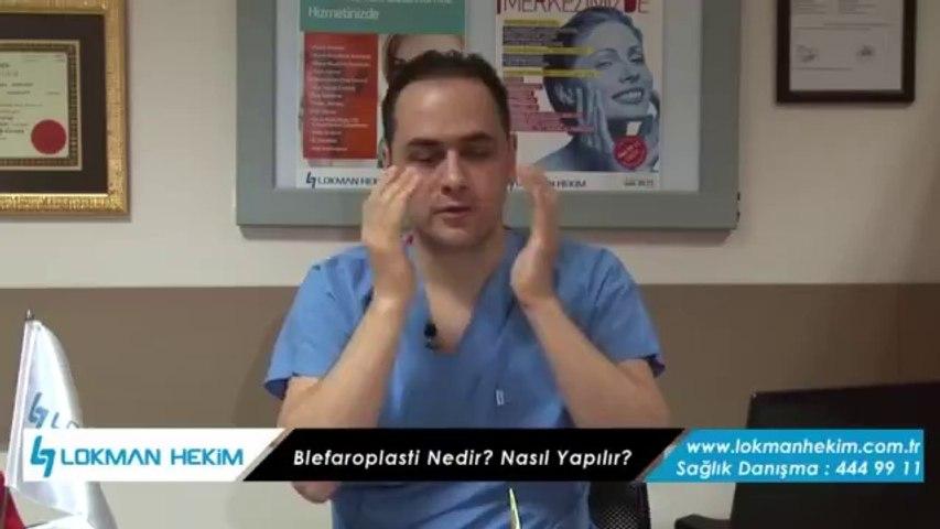 Göz Kapağı Estetiği İçin Nasıl Bir Operasyon Yapılır?
