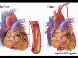 What is BYPASS SURGERY (open heart surgery)