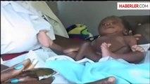 Dört Kollu Dört Bacaklı Bebek