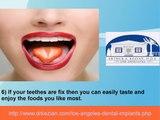 7 Benefits Of Dental Implants
