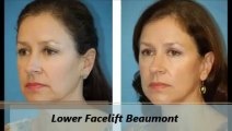 Facial Plastic Surgery of Beaumont Lower Facelift Procedure
