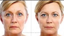 Facial Plastic Surgery of Beaumont Injectable Fillers Procedure