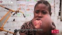 Une fille avec une tumeur d'une taille d'une balle de football dans la bouche