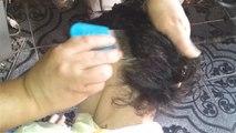 Yuck! Little girl's severe lice infection