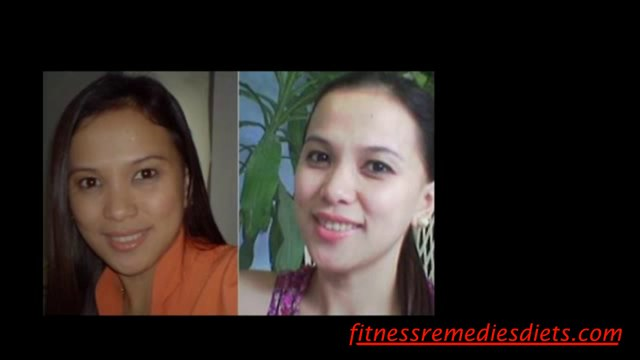 Home Skin Whitening Dr. Shah Ebook Review