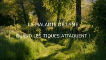 La Maladie De Lyme : Quand Les Tiques Attaquent !