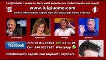 Protesi capelli per uomo donna emilia romagna Bologna Parma Piacenza Ravenna Reggio Emilia Rimini