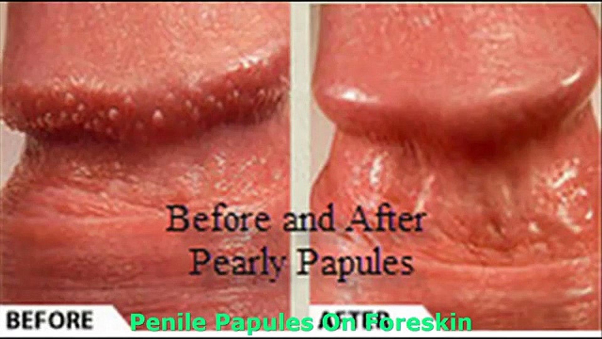 Penile papules go away