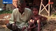 Baby in India born with four arms and legs dubbed God Boy by parents -