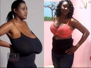 Biggest Breast Reduction in America