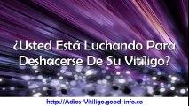 Leucoderma, Cura Para El Vitiligo, Como Se Cura El Vitiligo, Tipos De Manchas En La Cara