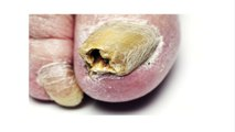 Have nasty yellow toenails caused from nail fungus? Try thes - video ...