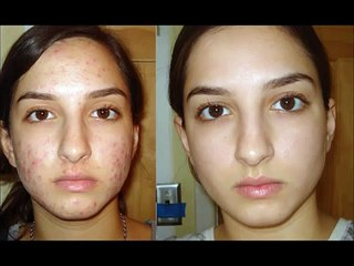 How A Girl Ended Her Acne With Natural Products