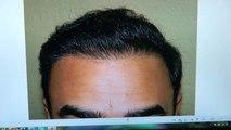 Man Hair Loss Transplant Restoration Surgery Dr. Diep www.mhtaclinic.com