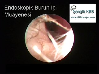 Çocuklarda Sinüzit Muayenesi - Endoscopic diagnosis of sinusitis in children