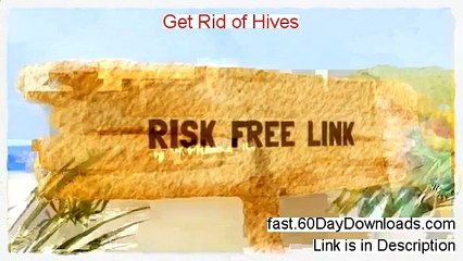 My Get Rid Of Hives Review (+ instant access)