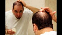 Alopecia Hair Growth Remedy | Hair Loss Protocol