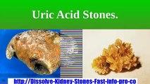 Kidney Stones Symptoms, What Causes Kidney Stones, Stone In Kidney, Struvite Stones
