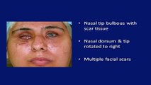 Botox Treatment   Botox Injection (Juvederm, Restylane) in