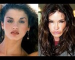Worst celebrity plastic surgery disasters compilation | Plastic surgery fails
