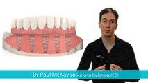How do Dental Implants, 'Teeth on Implants' work?
