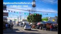 Dentist in San Diego California - Dental Implants in San Diego California!