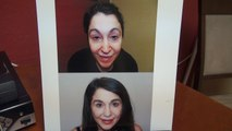 Woman Eyebrows Hair Loss Transplant Restoration Surgery 12 Months Result Dr. Diep www.mhtaclinic.com