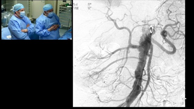 Complex Right renal artery stenosis femoral approach for renal artery stenting.Left Renal artery occlusion