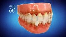 Invisalign Dentist Citrus Heights CA - Call (916) 302-4421