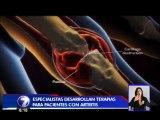 Pacientes con artritis reumatoide cuentan con nuevo tratamiento oral
