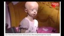 Vücudu 100 Yaşında Olan Kız 17 Yaşında Öldü