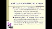 COMPLICACIONES DEL LUPUS ERITEMATOSO SISTÉMICO
