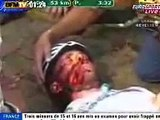 The worst of Cycling Cadute e incidenti