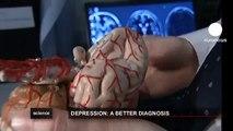 euronews science - Le cerveau s'attrophie en cas de dépression majeure