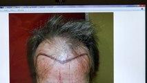 Man Hair Loss Bald Hairline Transplant Restoration Surgery  Dr. Diep www.mhtaclinic.com