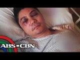 Vhong Navarro undergoes reconstructive Surgery