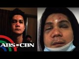 Shocking Photos of Vhong Navarro after The Fort attack