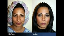 Rhinoplasty Before & After - Plastic Surgeon New York