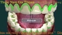 Chữa Sâu Răng Khỏi 100%  - Cách Phòng Ngừa Sâu Răng - Nguyên Nhân Gây Sâu Răng