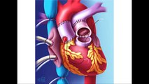 Aortic Valve Replacement Surgery Video