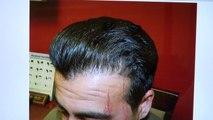 Fantastic Dense Man Hair Loss Transplant Hairline Restoration Surgery 1 Yr Follow Up Dr. Diep www.mhtaclinic.com