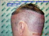 FUE Hair Transplant Result - 3050 Grafts - HDC Hair Transplant Clinic