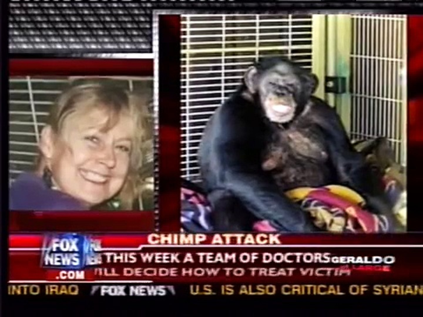 Victim of Chimp attack reportedly has both hands amputated and her face is  gone