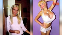 Glamour Model Victoria Wild Spends £30,000 on Plastic Surgery To Become The 'New Katie Price'