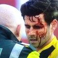 Incroyable blessure lors d'un match de football