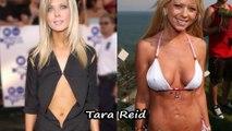 Top 10 des pires chirurgies esthétiques de stars